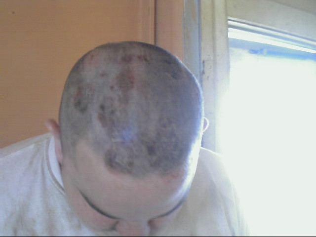 August 23, 2002 the top of Randy's head 2 days after the flare up.