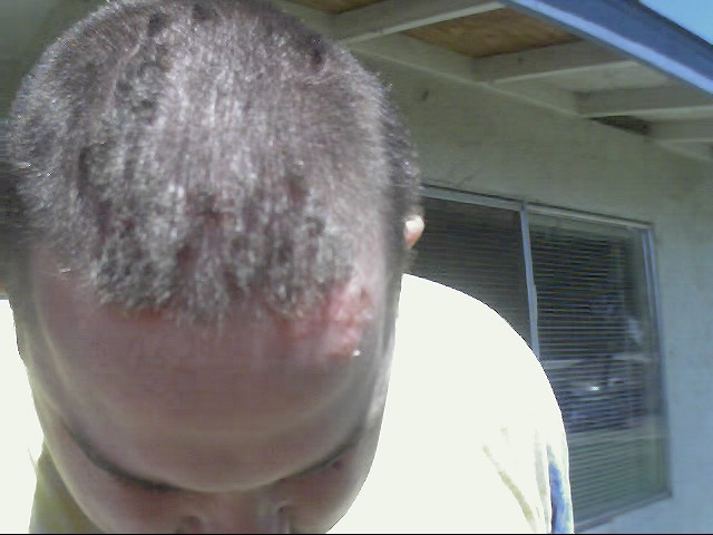 The top of Randy's head during a flare up on 8/21/01
